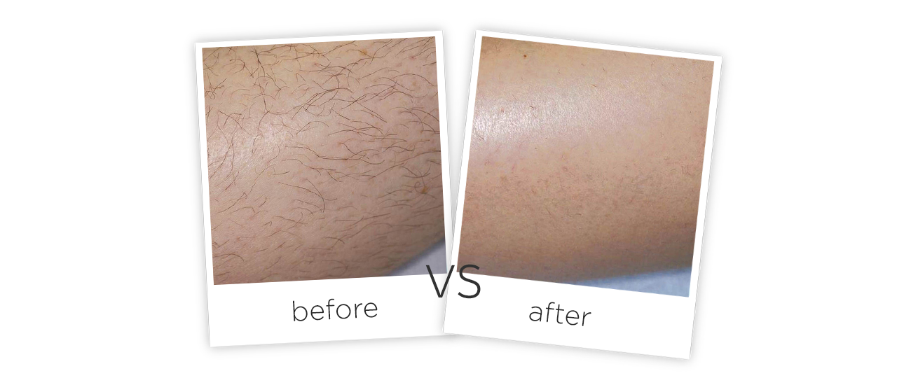 1064nm Long Pulse Laser Treatment Before&After