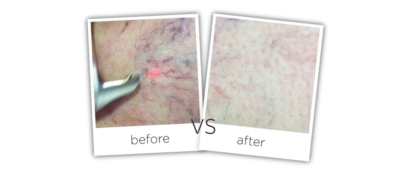 At Home Laser Spider Vein Vascular Removal Machine Before&After