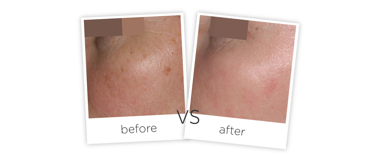 Treatment  /  Acne Scars Treatment Treatment results