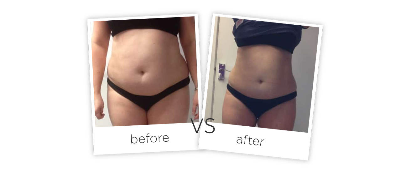 Cold Slimming, FG660L-006 Before&After