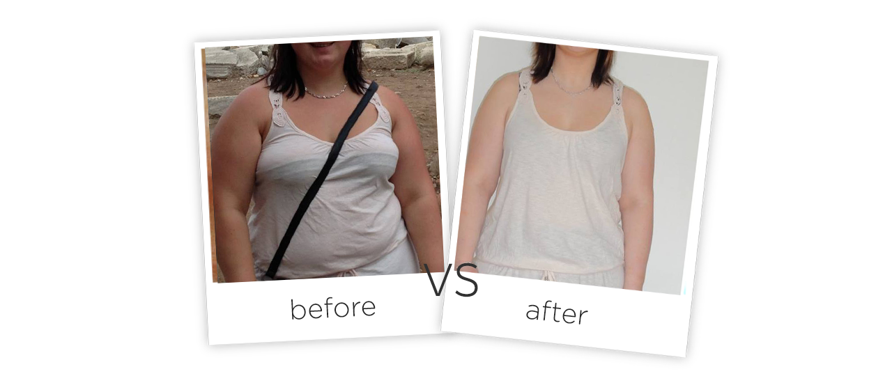 Cold Slimming, FG660L-006 Treatment Before&After