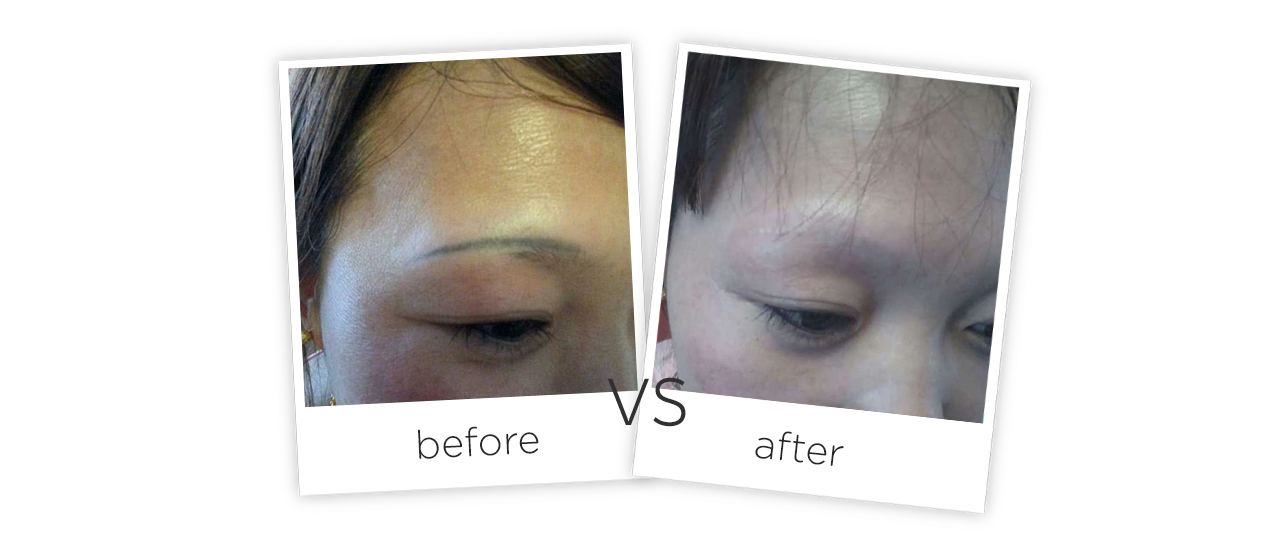 Q-Switched ND YAG Laser-FG2014 Before&After
