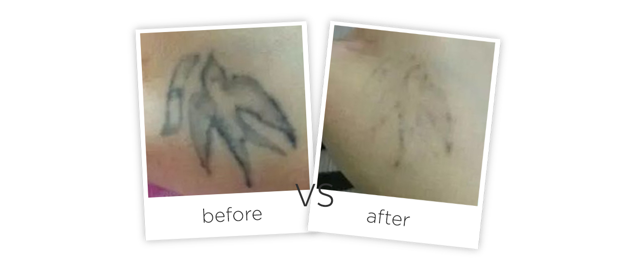 Medical Picosecond Laser Tattoo Removal Machine Before&After