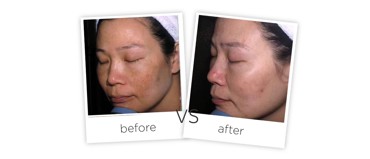 Medical Picosecond Laser Tattoo Removal Machine Treatment results