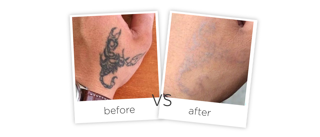 Medical Picosecond Laser Tattoo Removal Machine Treatment Before&After