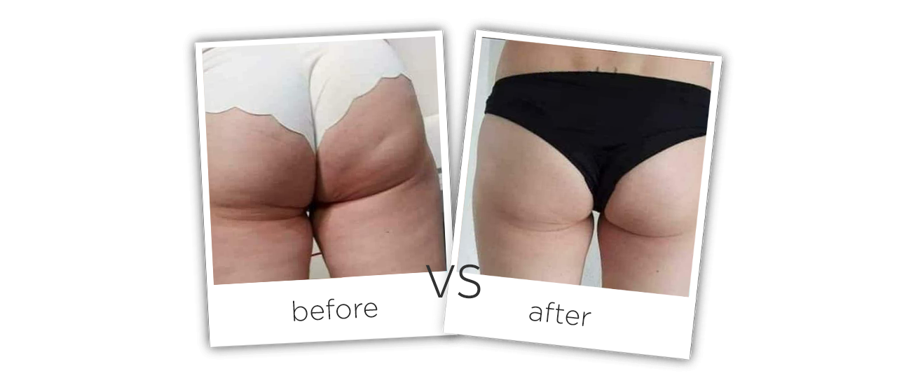 Treatment  /  Body Shaping Before&After
