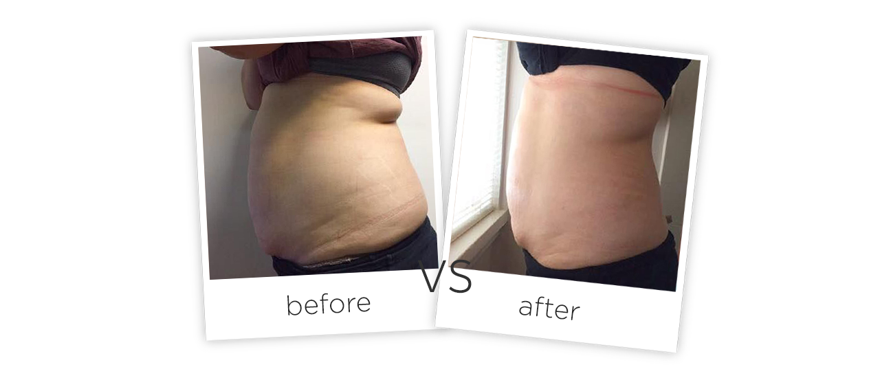 Treatment  /  Body Shaping Treatment results