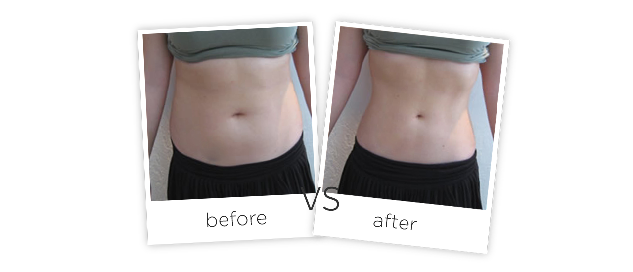 Treatment  /  Body Shaping Treatment Before&After