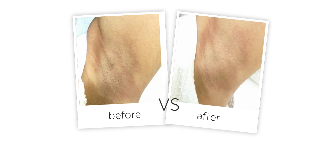 At Home Fiber Laser Hair Removal Machine Before&After