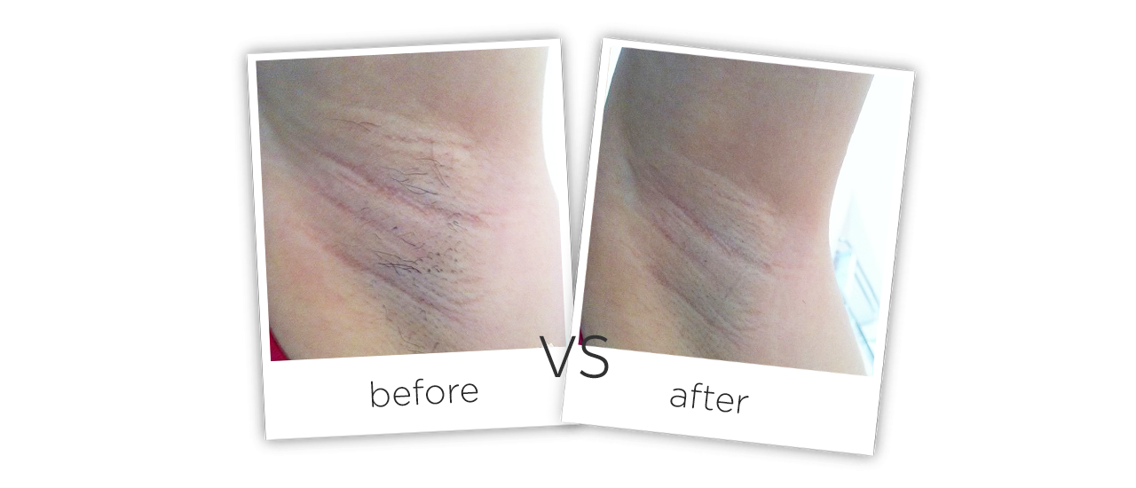 At Home Fiber Laser Hair Removal Machine Treatment results