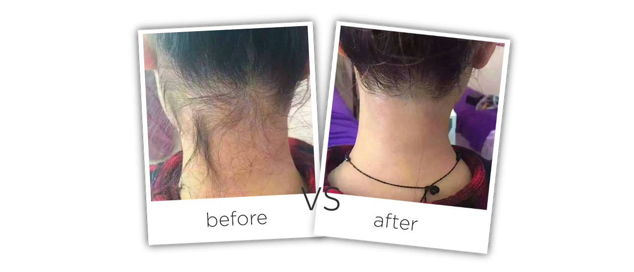At Home Fiber Laser Hair Removal Machine Treatment Before&After